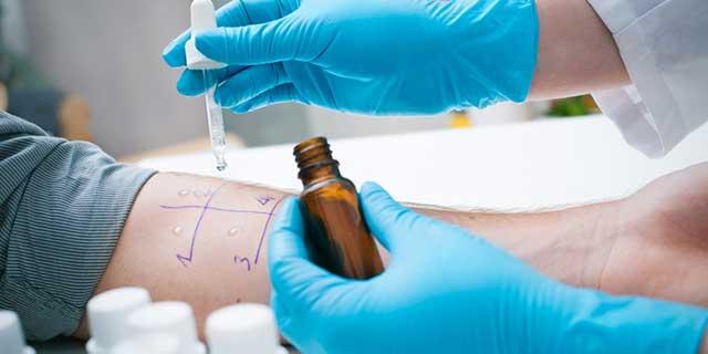 Pricktest zur Diagnose von Allergien des Soforttyps Typ 1. Bild: Test-Lösungen werden auf einen Unterarm aufgetragen.