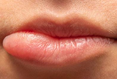 Stark geschwollene Lippen - dies ist ein Zeichen für eine allergische Reaktion