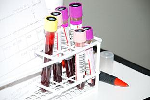 Verschiedene Blutproben in einem weißen Probenhalter
