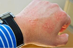 Für eine Kontaktallergie typische Bläschen auf dem Handrücken eines Mannes
