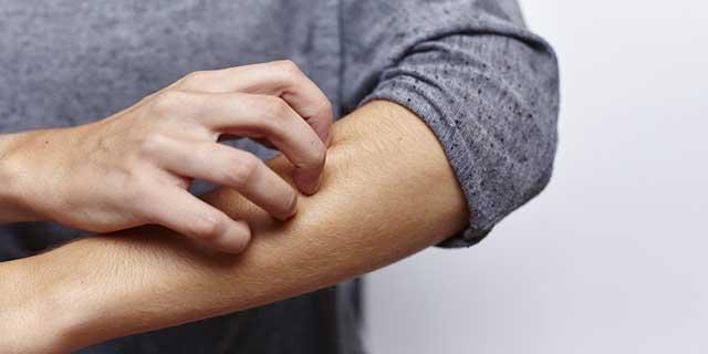 Kontaktallergie - Mann kratzt sich am Unterarm