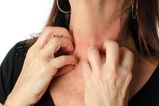 Frau mit Hautausschlag am Hals infolge einer Nahrungsmittelallergie kratzt sich mit beiden Händen