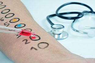 Allergietest bei Neurodermitis