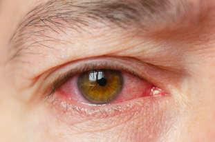 Großaufnahme des Auges eines Mannes. Es ist durch eine Bindehautentzündung stark gerötet.