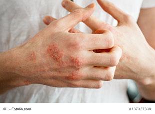 Kratzen bei deutlichem Ausschlag auf dem Handrücken
