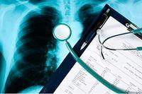 Testbogen und Stethoskop liegen auf Röntgenbild der Lunge