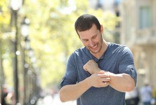 Mann kratzt sich am Arm bei Hitze in der Natur - ©Antonioguillem - stock.adobe.com